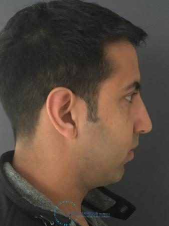 Rhinoplasty: Patient 78 - After Image 5