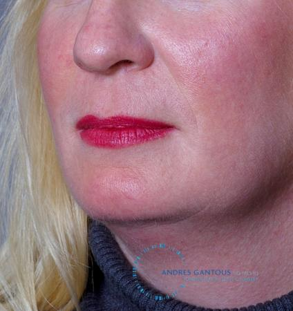 Chin Augmentation: Patient 9 - Before Image 2