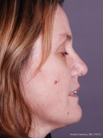 Rhinoplasty: Patient 42 - After Image 3