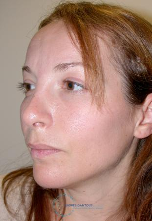 Revision Rhinoplasty: Patient 2 - Before Image 3