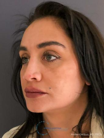 Revision Rhinoplasty: Patient 13 - Before Image 4