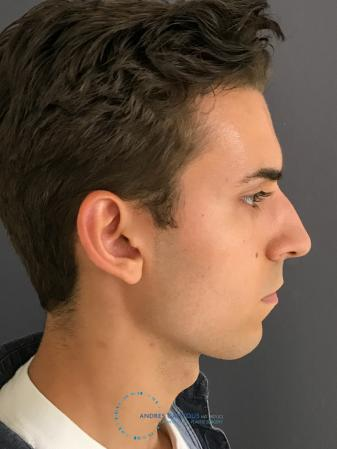 Rhinoplasty: Patient 67 - Before and After Image 6