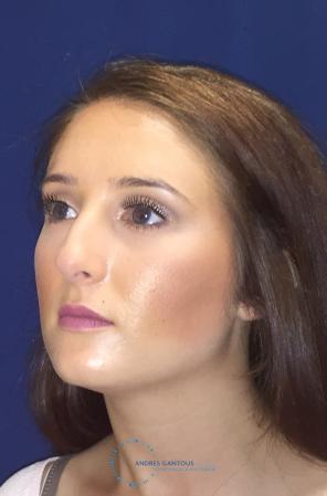 Rhinoplasty: Patient 1 - Before Image 3