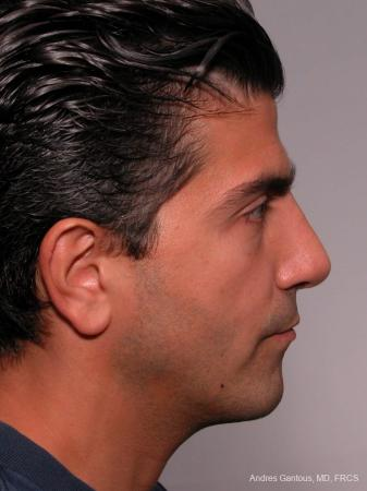 Rhinoplasty: Patient 25 - After Image 4