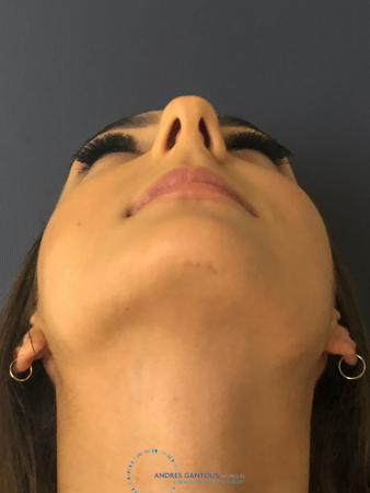 Rhinoplasty: Patient 12 - Before Image 2