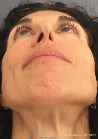 Revision Rhinoplasty: Patient 6 - Before Image 2