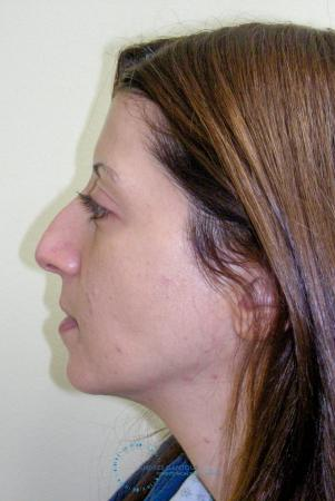 Rhinoplasty: Patient 64 - Before Image 5