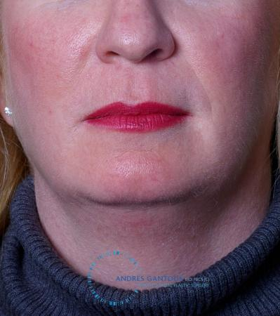 Chin Augmentation: Patient 9 - Before Image