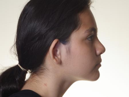 Otoplasty And Earlobe Repair: Patient 20 - Before Image 3