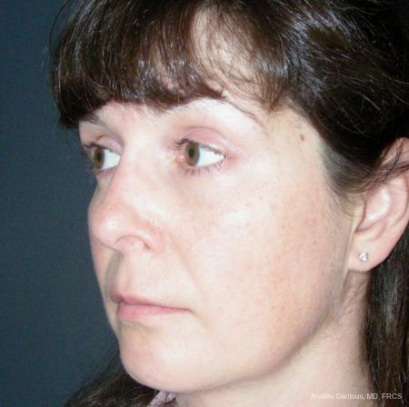 Reconstructive Rhinoplasty: Patient 5 - After Image 4