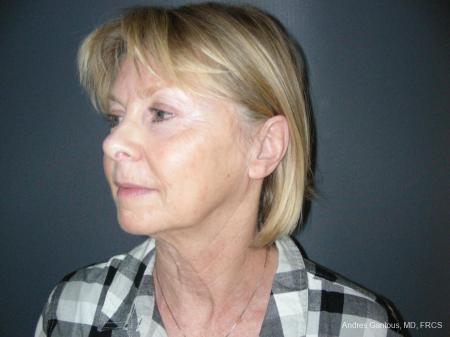 Facelift & Neck Lift: Patient 10 - Before Image 4