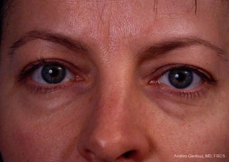 Eyelid Lift: Patient 4 - Before Image