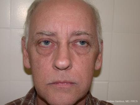 Otoplasty And Earlobe Repair: Patient 24 - Before Image 1