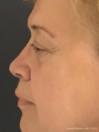 Rhinoplasty: Patient 21 - After Image 5