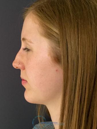 Rhinoplasty: Patient 28 - Before Image 5