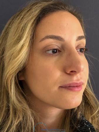 Rhinoplasty: Patient 74 - After Image 3