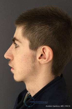 Rhinoplasty: Patient 83 - After Image 4
