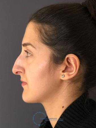 Rhinoplasty: Patient 10 - Before Image 5