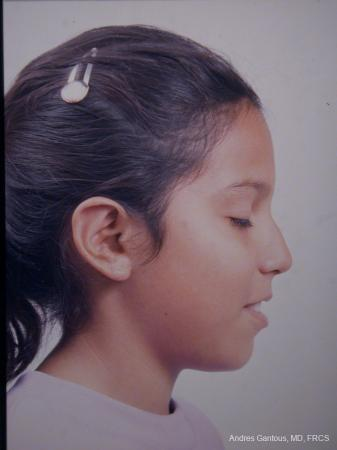 Otoplasty And Earlobe Repair: Patient 4 - After Image 2