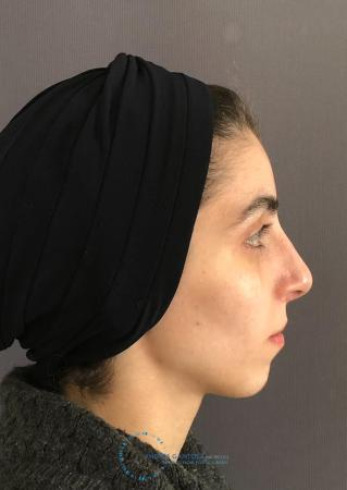 Rhinoplasty: Patient 60 - After Image 5