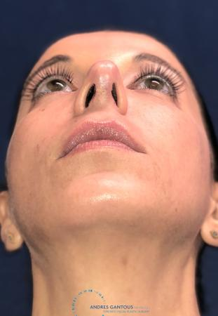 Rhinoplasty: Patient 64 - After Image 2