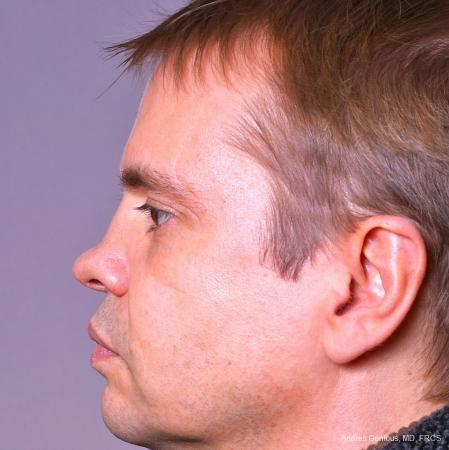 Rhinoplasty: Patient 39 - Before and After Image 5