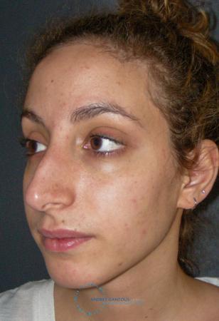 Rhinoplasty: Patient 74 - Before Image 4