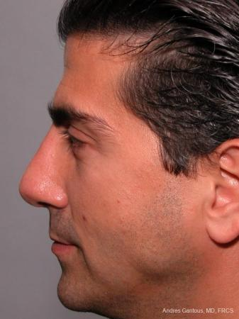 Rhinoplasty: Patient 25 - After Image 3