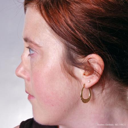 Reconstructive Rhinoplasty: Patient 2 - Before Image 3