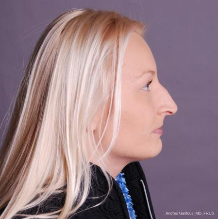 Rhinoplasty: Patient 49 - Before Image 3