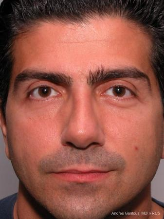Rhinoplasty: Patient 25 - After Image 1