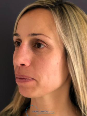 Rhinoplasty: Patient 75 - After Image 3