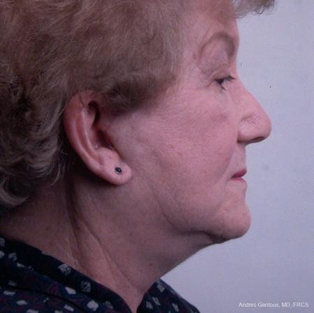 Facelift & Neck Lift: Patient 7 - After Image 3