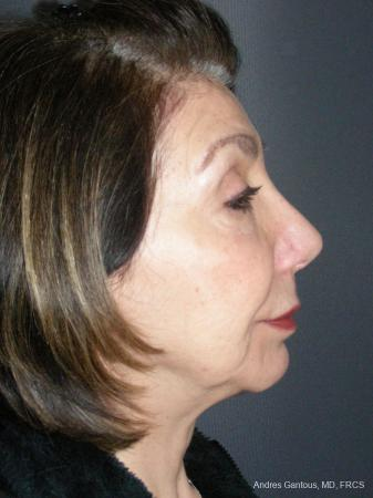 Rhinoplasty: Patient 55 - After Image 5