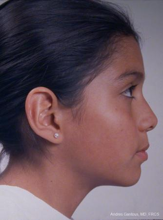 Otoplasty And Earlobe Repair: Patient 25 - Before Image 3
