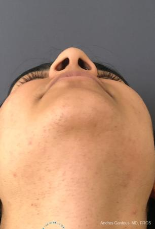 Rhinoplasty: Patient 88 - Before Image 2