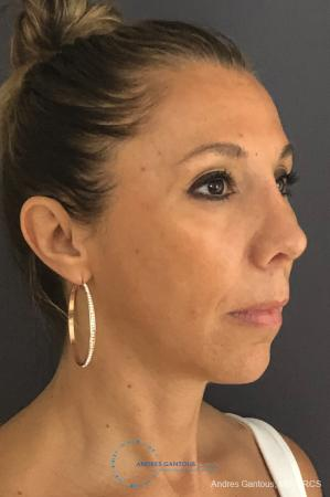 Revision Rhinoplasty: Patient 3 - After Image 4