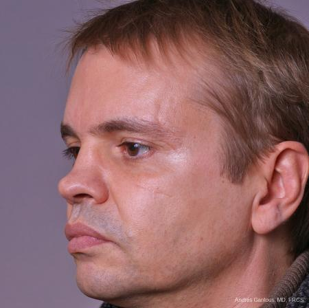 Rhinoplasty: Patient 40 - Before and After Image 3