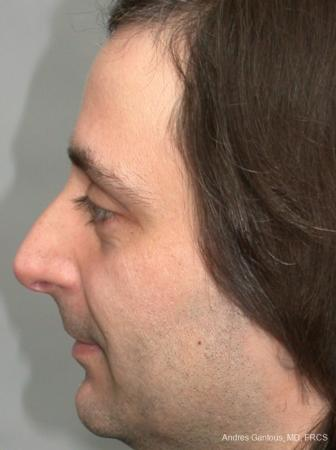 Rhinoplasty: Patient 18 - Before Image 3