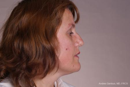 Rhinoplasty: Patient 49 - Before Image 3