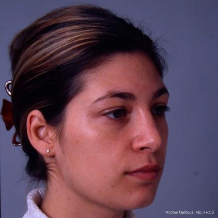 Rhinoplasty: Patient 33 - After Image 3