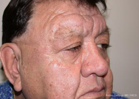 Eyelid Lift: Patient 3 - After Image 2
