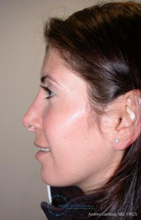 Revision Rhinoplasty: Patient 1 - After Image 4