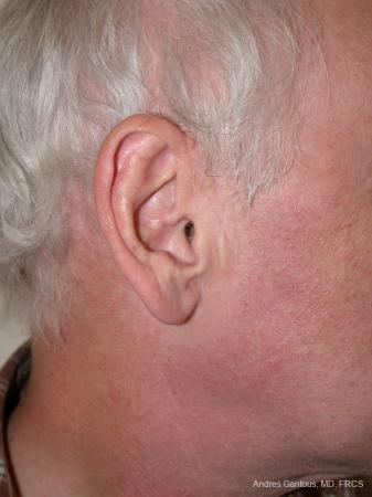 Otoplasty And Earlobe Repair: Patient 24 - Before Image 3
