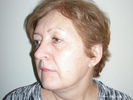 Facelift & Neck Lift: Patient 9 - Before Image 4