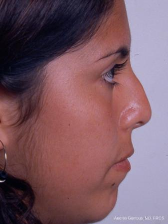 Rhinoplasty: Patient 20 - Before Image 4