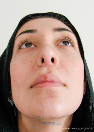 Revision Rhinoplasty: Patient 5 - After Image 2