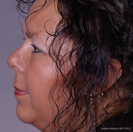 Reconstructive Rhinoplasty: Patient 1 - After Image 3