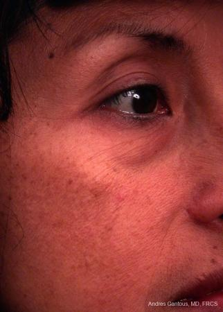Eyelid Lift: Patient 7 - Before and After Image 2