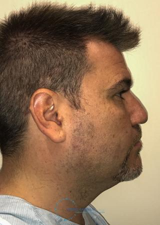 Revision Rhinoplasty: Patient 24 - Before and After Image 6
